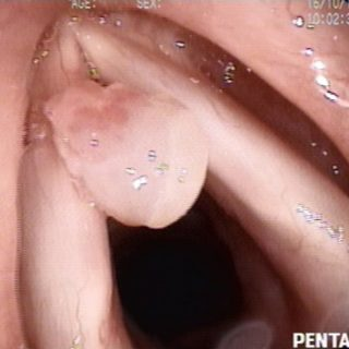 019 - Papilloma in the laryngeal area.