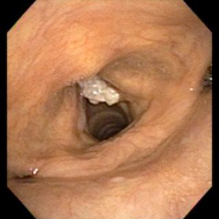 031 - Carcinoma