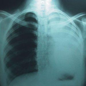 191 - Estenosis bronquial benigna