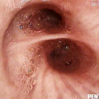 045 - Bronchial secretions