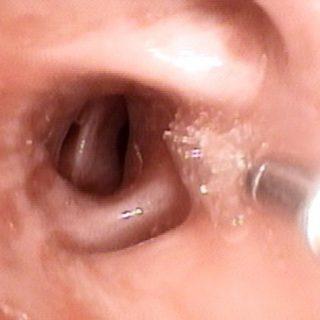 052 - Bronquio segmentario