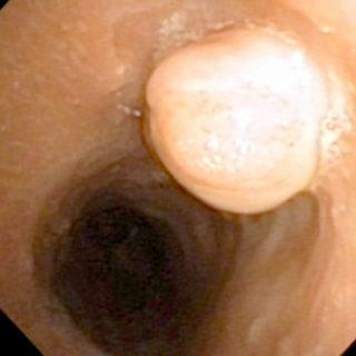 133 - granuloma pálido