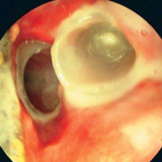 203 - Doble stent bronquial