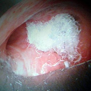 239 - Fistula occlusion