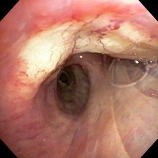 105 - adenocarcinoma