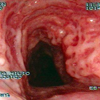 143 - Traqueopatía osteocondroplástica