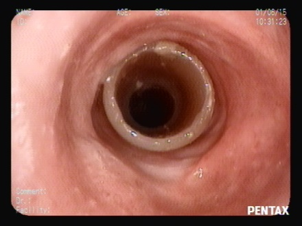 Image A: Stent in the airway with 10 years of permanence